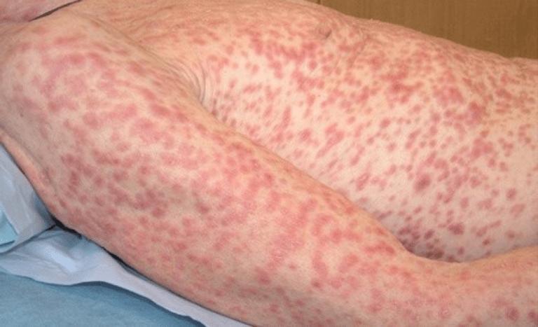 Nếu không được sớm điều trị, bệnh sẽ lây lan khắp cơ thể và gây ra nhiều biến chứng nguy hiểm