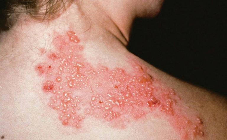Bệnh giời leo xuất hiện bỏng nước gây đau rát ngứa ngáy