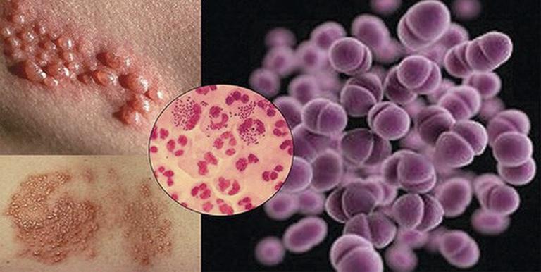 Song cầu khuẩn lậu Neisseria Gonorrhoeae là tác nhân gây ra bệnh lậu