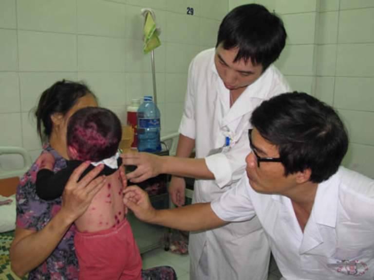 Trẻ bị bội nhiễm nặng vì cha mẹ cho mặt nhiều quần áo và không cho mở quạt, điều hòa
