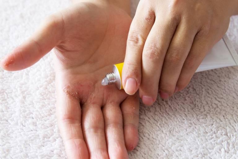 Chữa bệnh vảy nên bằng phương pháp dân gian cũng mang đến nhiều dấu hiệu tích cực cho người bệnh