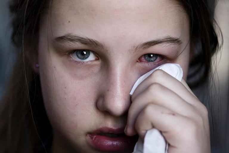 Bệnh zona ở mắt