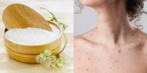Tắm muối giúp giảm thiểu nguy cơ viêm da nhiễm khuẩn ở người bệnh thủy đậu