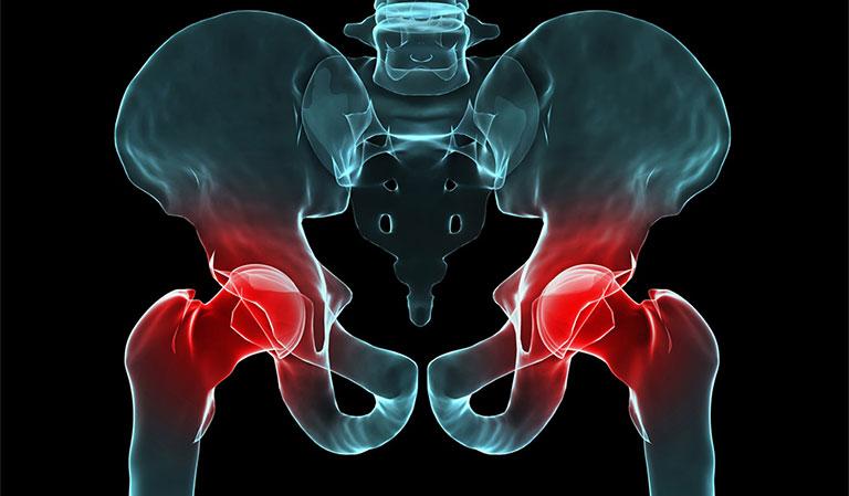 Gãy xương sau khi thay khớp háng