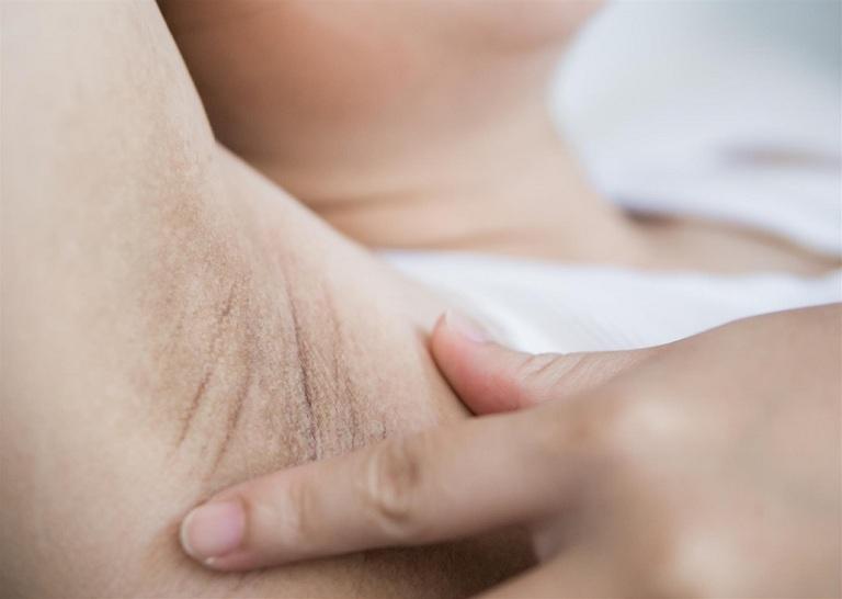 Tác hại của viêm lỗ chân lông ở nách