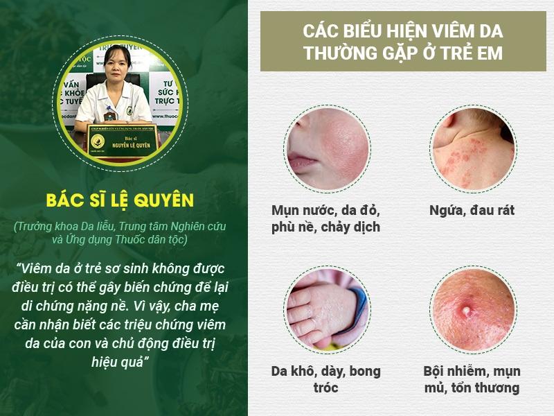 Triệu chứng viêm da ở trẻ sơ sinh