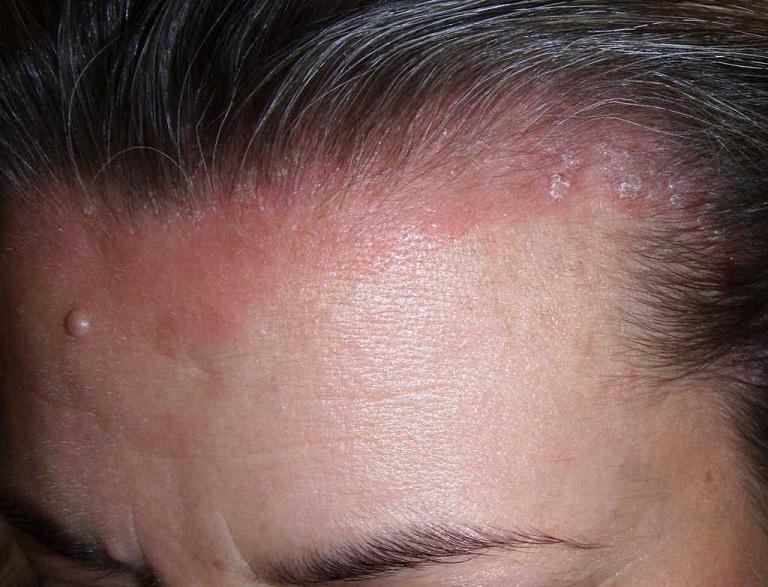 các bệnh về da đầu thường gặp