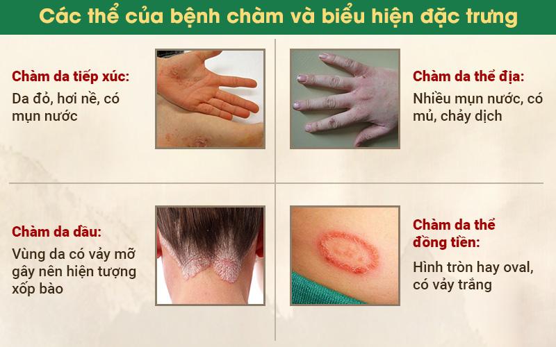 các thể của bệnh chàm và biểu hiện