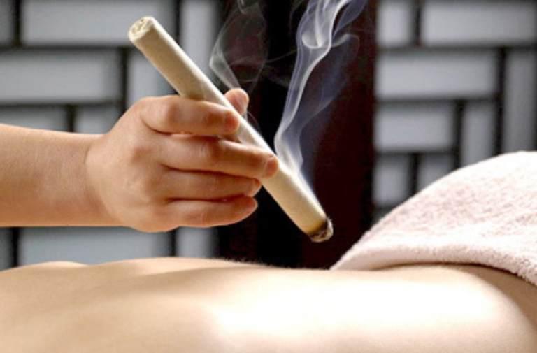 Lấy điếu ngải hơ dọc sống lưng giúp giảm đau hiệu quả