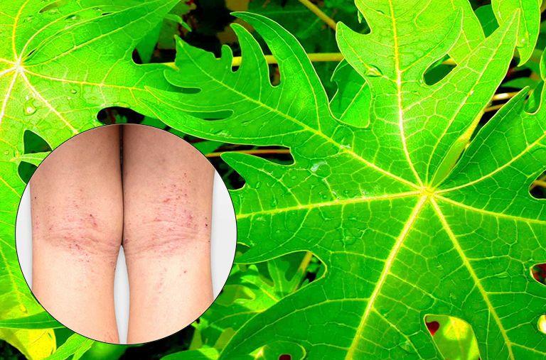 cách chữa viêm da cơ địa bằng lá đu đủ nguyên chất