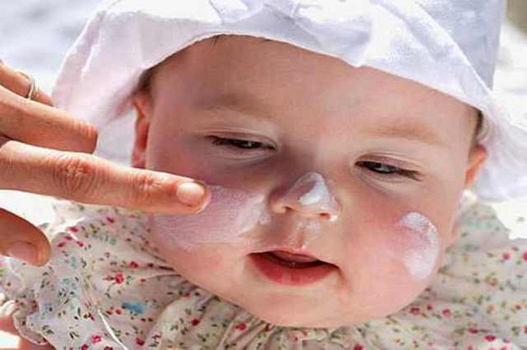 Trẻ sơ sinh bị rôm sảy ở mặt