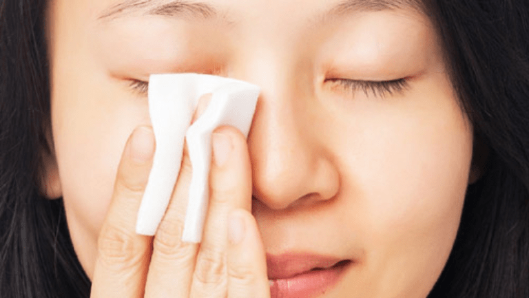 Khi da phục hồi, nên tẩy trang trước khi rửa mặt dù không trang điểm