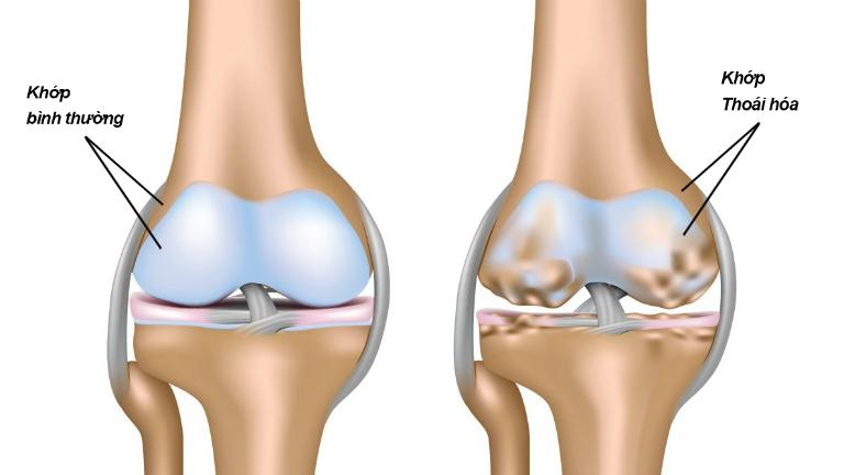 Thoái hóa khớp gối là tình trạng xương dưới sụn và sụn ở khớp gối bị hư hỏng, khiến khớp gối bị suy giảm chức năng vận động.