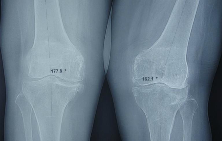 Qua phim chụp Xquang sẽ thấy khớp gối bị biến dạng, lệch trục hoặc xuất hiện gai xương,...