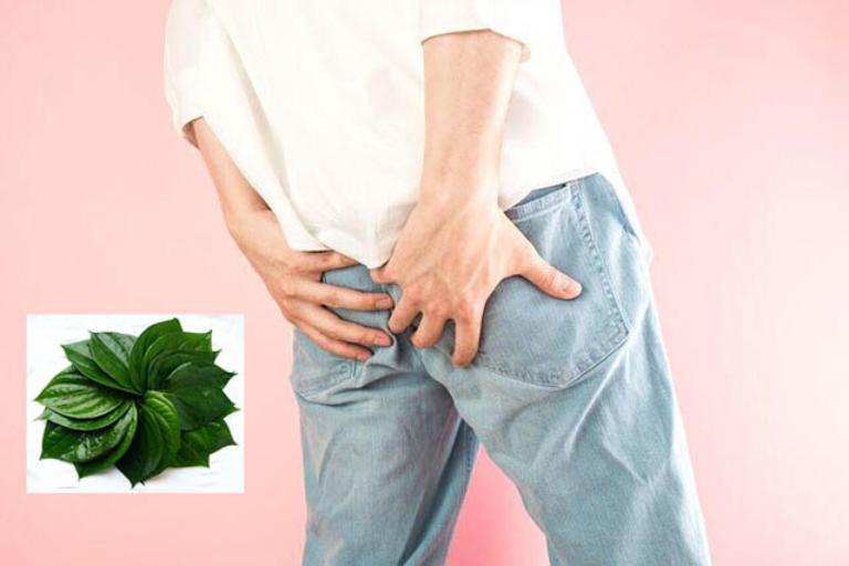 Chữa bệnh trĩ bằng lá trầu không chỉ là biện pháp hỗ trợ điều trị