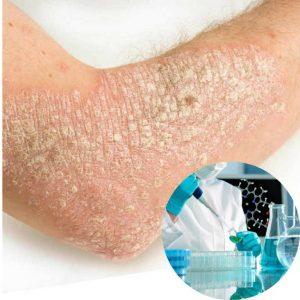 Chữa vẩy nến bằng phương pháp tiêm sinh học là biện pháp điều trị hiệu quả