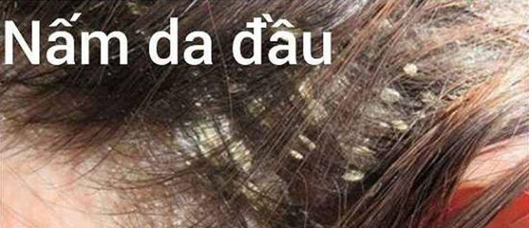 Bong tróc vảy trắng ở da đầu do nhiễm nấm