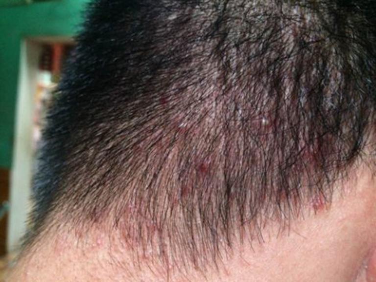 Tình trạng da đầu bị ngứa và nổi mụn