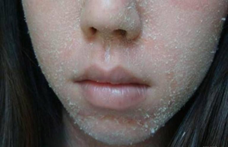 Da mặt bị bong tróc vảy trắng