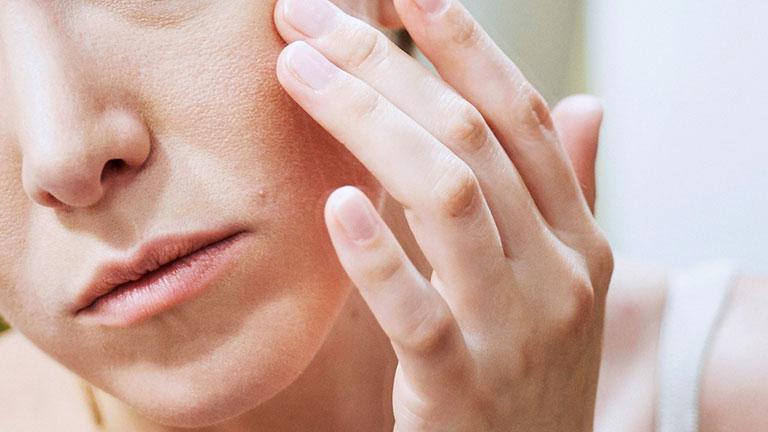 da mặt bị ngứa và nổi mụn là bệnh gì