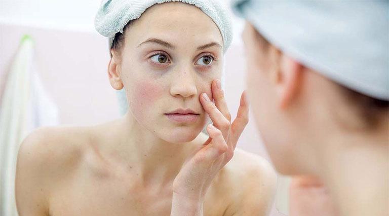 điều trị da mặt bị ngứa và nổi mụn