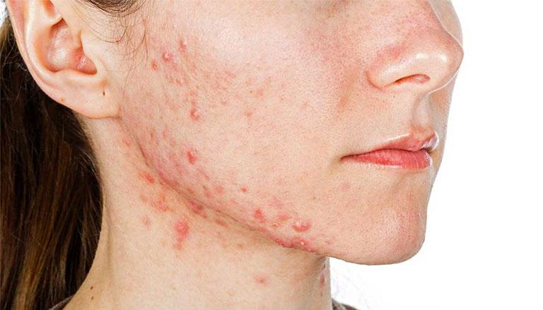 nguyên nhân da mặt bị ngứa và nổi mụn