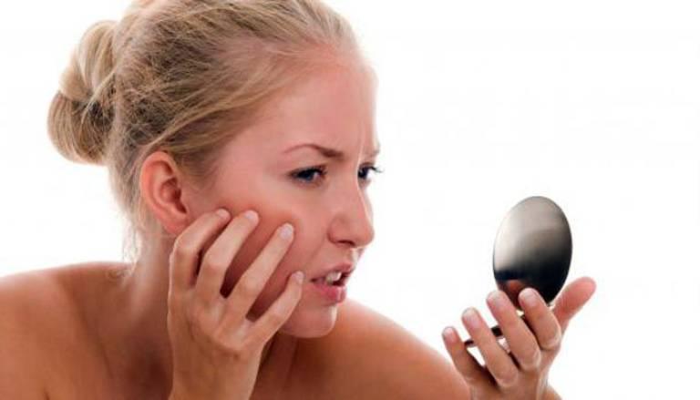 Da mặt đỏ, ngứa nhẹ sau khi sử dụng mỹ phẩm