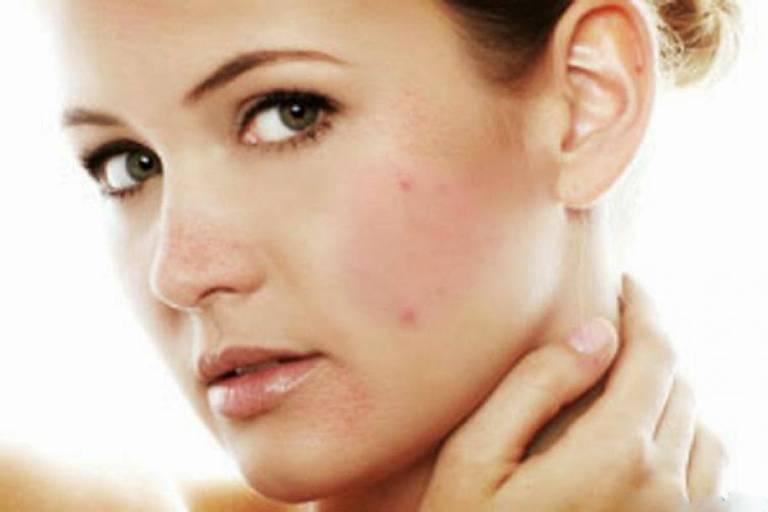 Da nổi mụn đỏ là dấu hiệu đặc trưng của dị ứng mỹ phẩm nhẹ