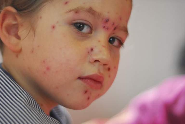 Các triệu chứng của bệnh thủy đậu kéo dài từ 7 - 10 ngày
