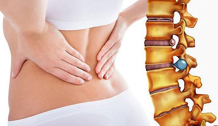 nguyên nhân đau lưng dưới