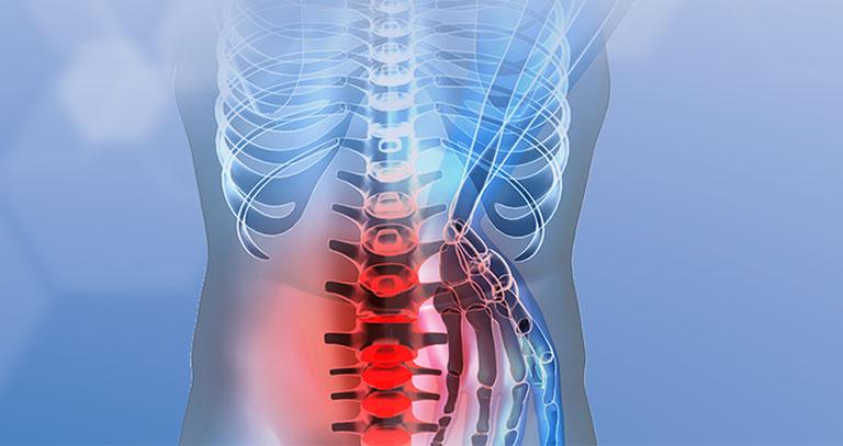 bị đau lưng dưới là bệnh gì