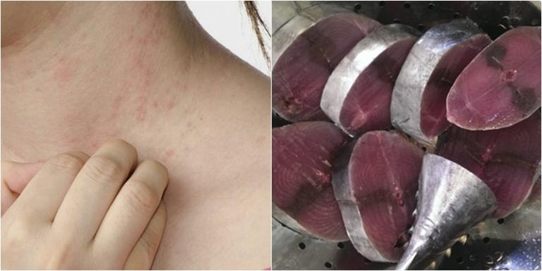 Cá ngừ là loại thực phẩm rất dễ gây ra tình trạng dị ứng