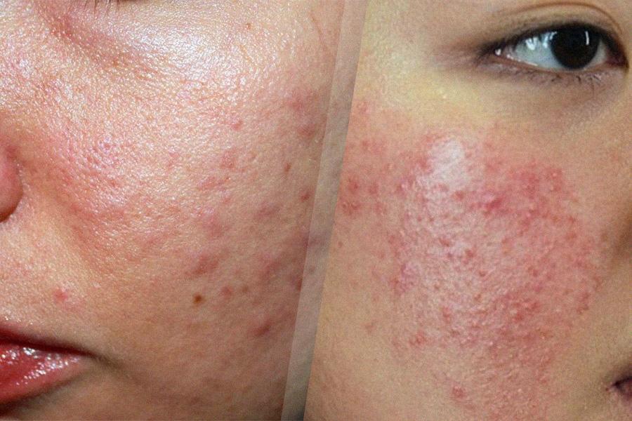 Dị ứng da mặt và cách khắc phục hiệu quả hoàn toàn từ thiên nhiên