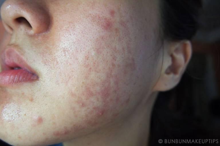Dị ứng mỹ phẩm cũng khiến da căng rát, khó chịu