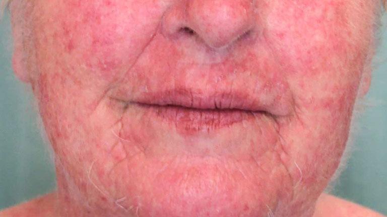 viêm da dị ứng tiếp xúc trên mặt
