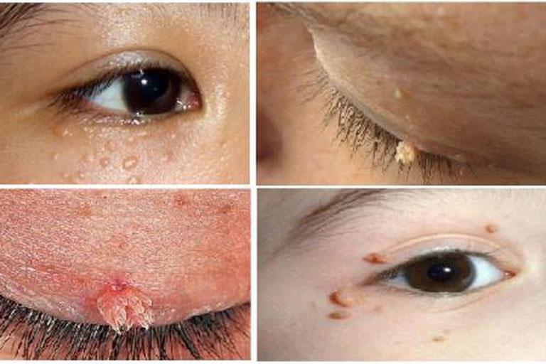 Hình ảnh sùi mào gà giai đoạn đầu ở mắt