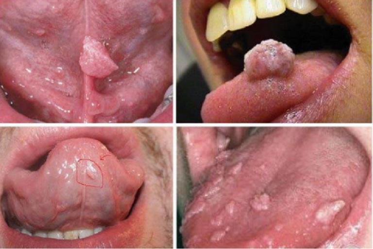 Hình ảnh sùi mào gà giai đoạn đầu ở lưỡi, miệng