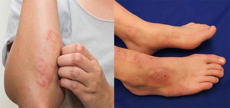 Hình ảnh viêm da cơ địa ở tay và chân