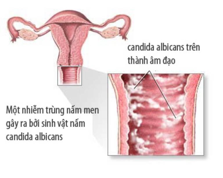 Viêm âm đạo do nấm Candida albicans gây ra
