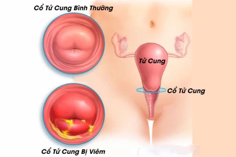 Viêm cổ tử cung cũng xuất hiện tình trạng huyết trắng có mùi hôi
