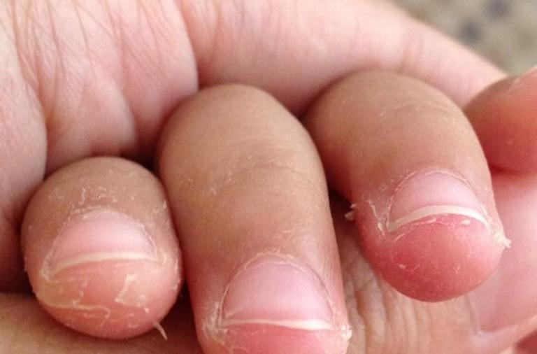 Đầu ngón tay bị lột da có chữa khỏi được không?