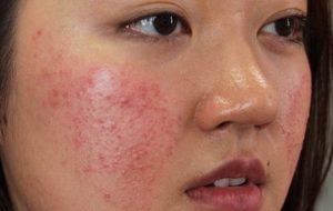 Tình trạng da mặt nổi mụn như rôm có thể do nhiều nguyên nhân gây ra