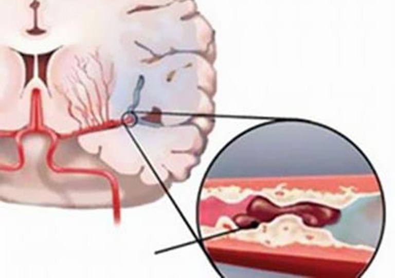 Thoái hóa đốt sống cổ làm giảm lượng máu lưu thông đến não gây ra tình trạng thiếu máu não