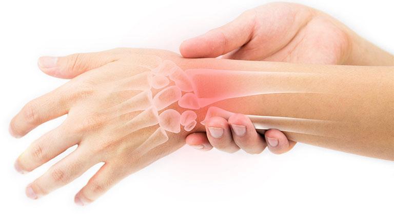 mổ nội soi hội chứng ống cổ tay