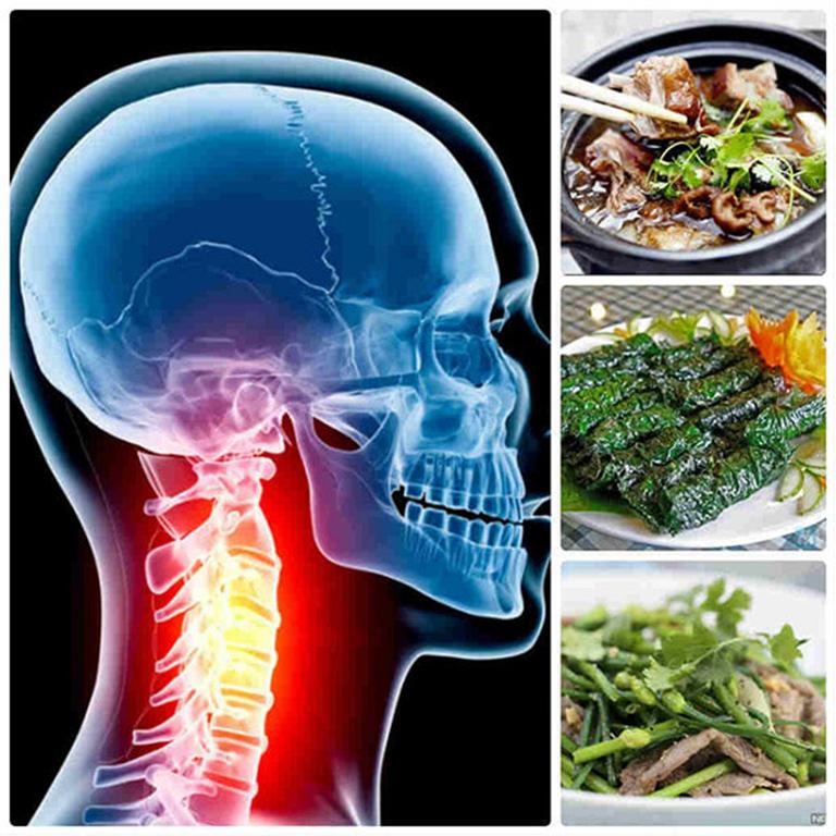 Các món ăn bài thuốc chữa thoái hóa đốt sống cổ giúp cải thiện tình trạng bệnh
