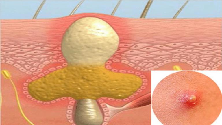 Mụn nhọt ở mông bị vỡ nếu không được xử lý đúng đắn sẽ gây nguy hiểm cho người bệnh