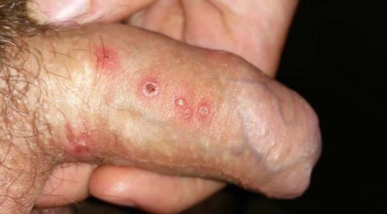 herpes sinh dục