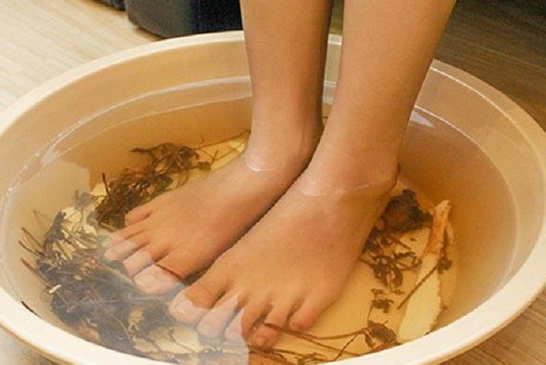 Ngâm chân vào nước lá ngải cứu chữa thoát vị đĩa đệm