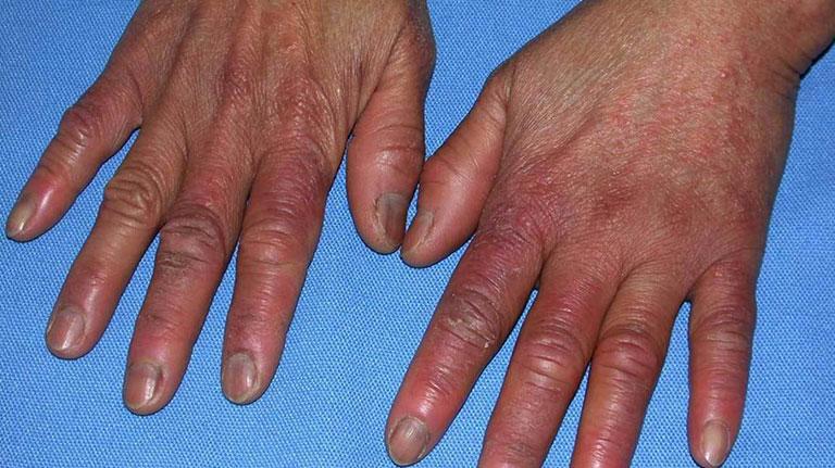 ngón tay bị sưng và ngứa là bệnh gì