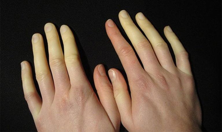 nguyên nhân khiến ngón tay bị sưng và ngứa